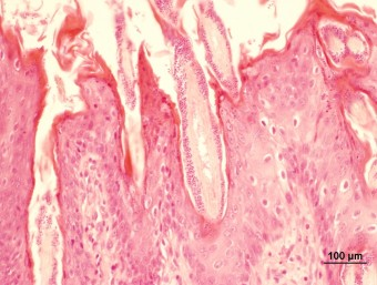 Microsporum canis on the hairs