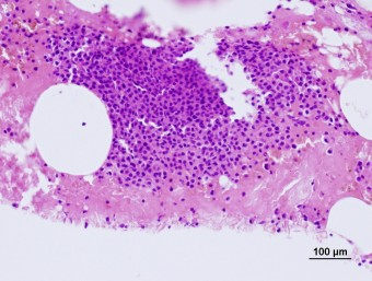 multiple myeloma, bone marrow, dog